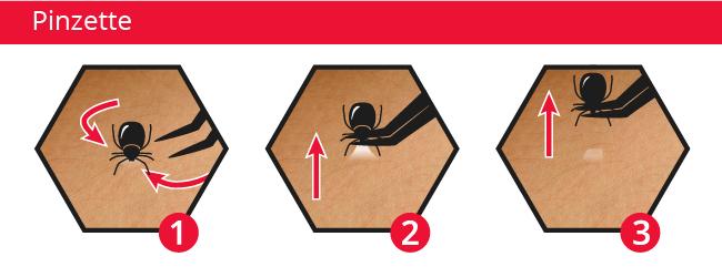 Zecke mit einer Pinzette entfernen