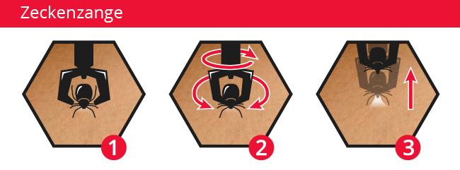 Zecke mit einer Zeckenzange entfernen