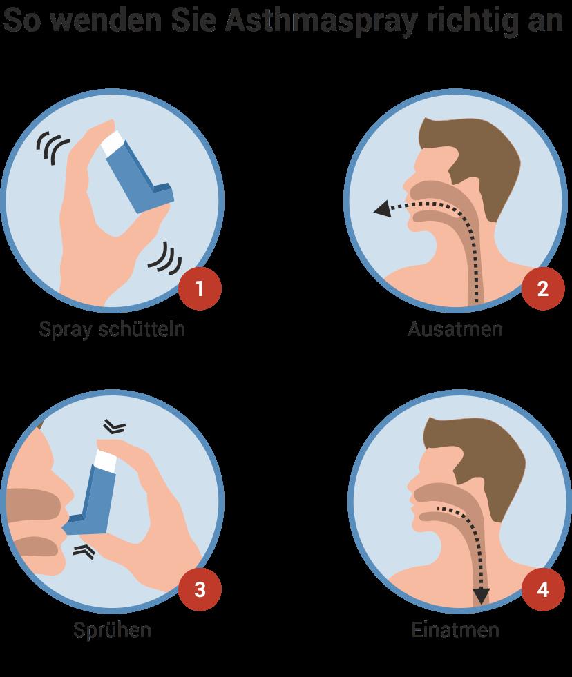 Richtige Anwendung von Asthmaspray