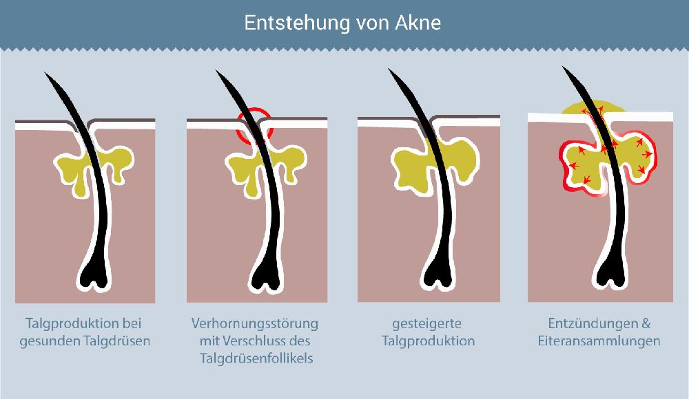 Entstehung von Akne