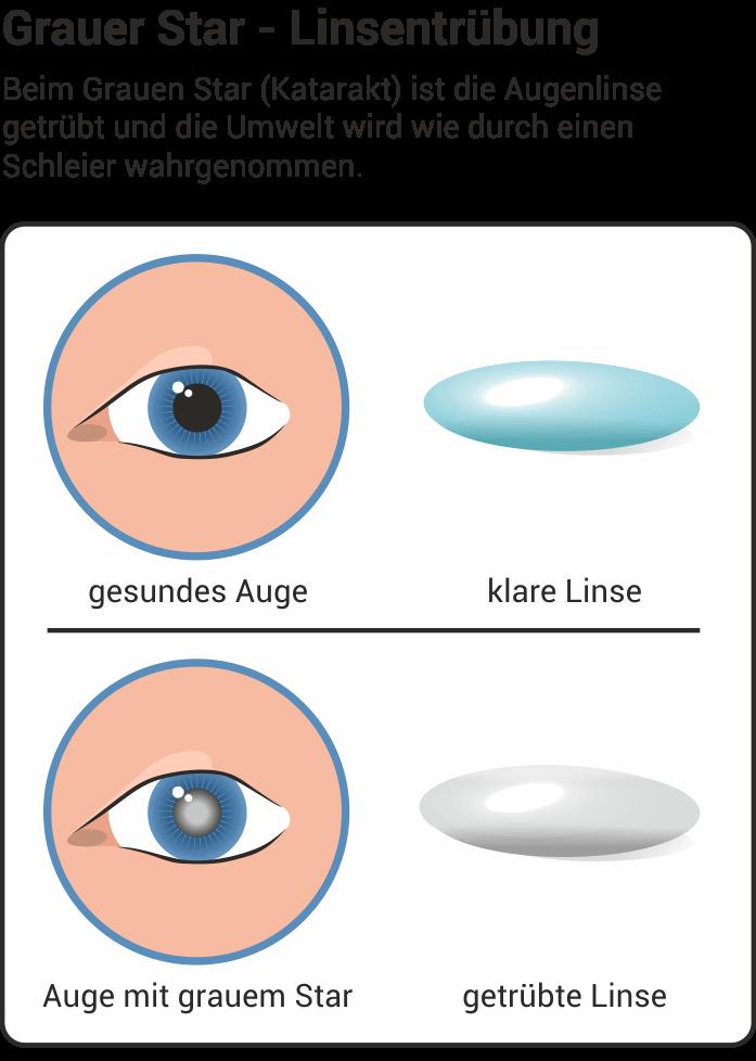 Typisch für grauen Star ist die Linsentrübung