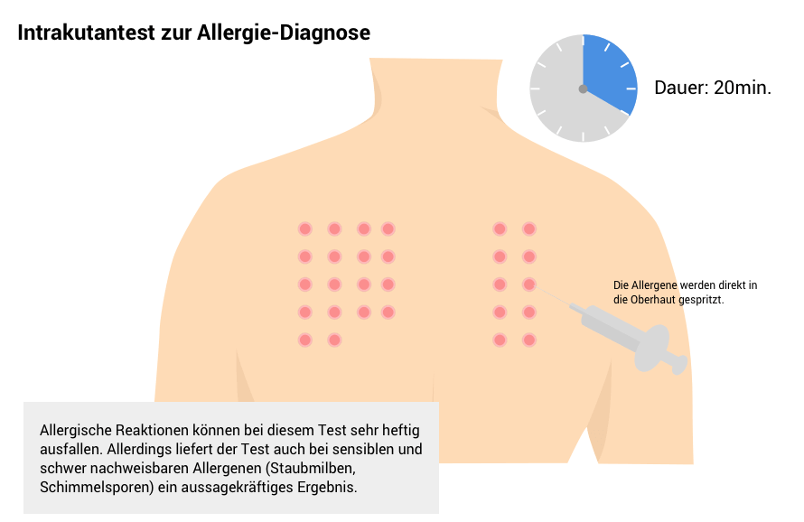Intrakutantest zur Allergie-Diagnose