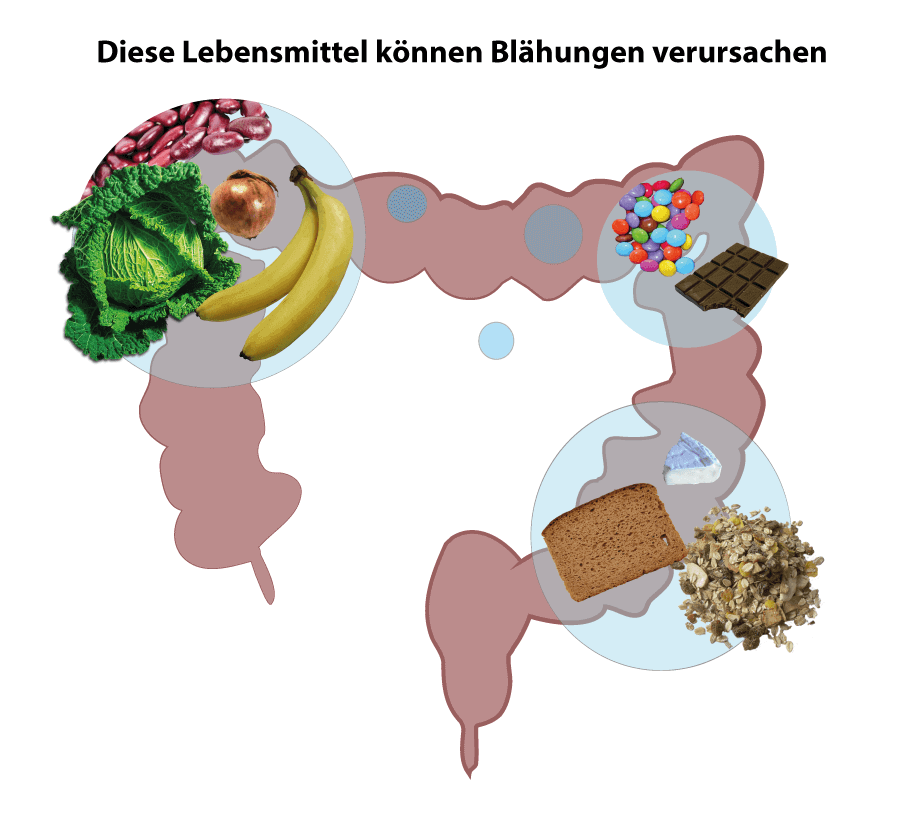 Lebensmittel, die Blähungen auslösen können