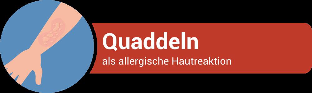 Quaddeln als Symptom einer allgerischen Hautreaktion
