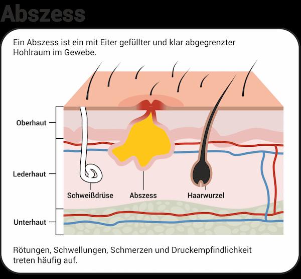 Abszess - ein mit Eiter gefüllter und klar abgegrenzter Hohlraum im Gewebe